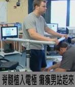 全球首例!脊髓植入電極癱瘓男站起來|台灣e新聞