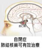 自閉症 肺結核藥可有效治療 -台灣e新聞