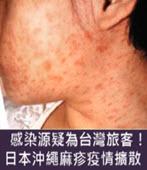 感染源疑為台灣旅客!日本沖繩麻疹疫情擴散 -台灣e新聞