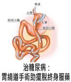 治糖尿病:胃繞道手術助擺脫終身服藥- 台灣e新聞